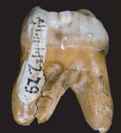 A denisovan tooth