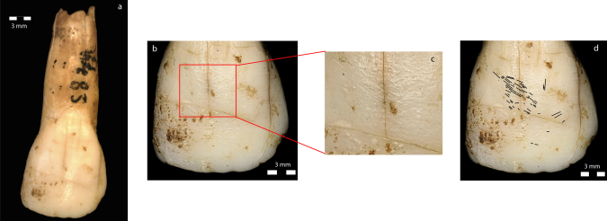Vergi's tooth, with the left-handed damage highlighted