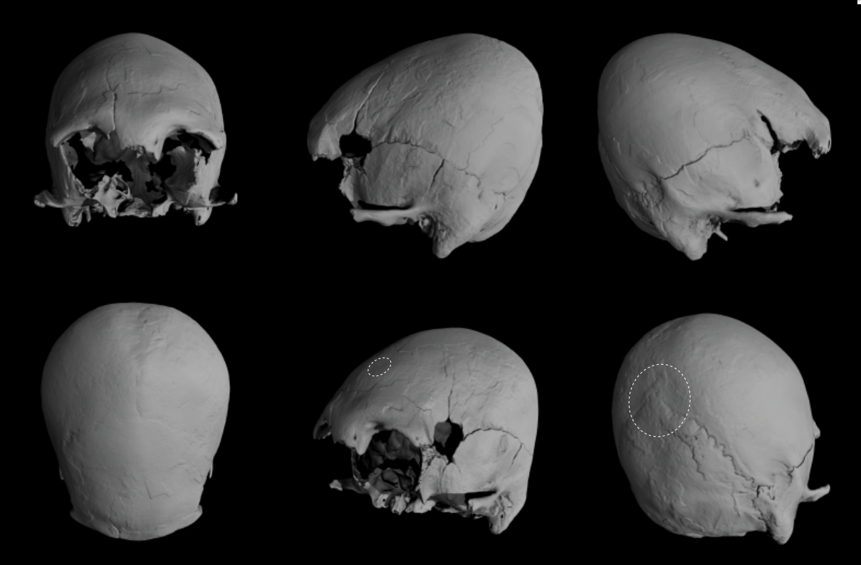 Oldest case of head binding discovered